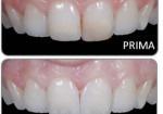 0004-conservativa4_dentista_centra_mestre-150x105