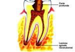0002-endodonzia2_dentista_centra_mestre-150x105