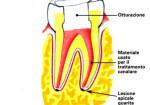 0003-endodonzia3_dentista_centra_mestre-150x105