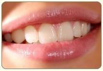 estetica.viso3s_dentista_centra_mestre
